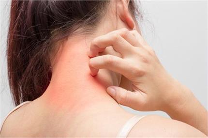 बार-बार होती है स्किन एलर्जी तो अपनाएं ये घरेलू नुस्खे