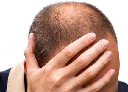 गंजापन कर रहा है शर्मिंदा तो आज से ही लगाएं यह तेल, उग आएंगे नए बाल