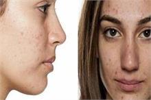 Age spots और Acne Spots में यह है फर्क