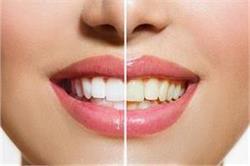 दांतों का पीलापन दूर करने के लिए ये 2 चीजें मिलाकर करें टूथपेस्ट