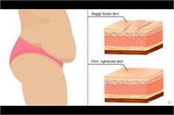 Sagging Skin की वजह से नहीं पहन पाती शॉर्ट्स तो फॉलों करें ये टिप्स