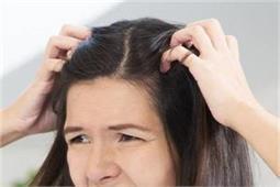 Monsoon Tips: पसीने की वजह से सिर में होती है खुजली तो क्या करें