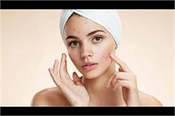 Pimples से जल्दी छुटकारा पाने के लिए असरदार हैं ये उपाय