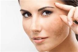 इन असरदार और सस्ते तरीकों से हटाएं चेहरे पर पड़े Dark Patches