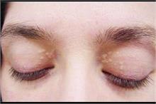 आंख के आस-पास सफेद दाग की तरह जमे कोलस्ट्रॉल को कैसे करें कम