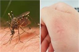 कैमिकल दवाइयां करेंगी सेहत खराब, इन घरेलू चीजों से मच्छरों को रखें दूर