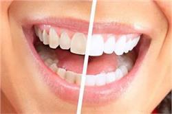 आपके जिद्दी पीले दांतों को एक ही बार में चमकाएगा यह गजब का नुस्खा!