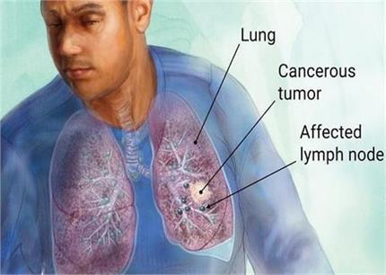 लंग कैंसर से बचे रहना हैं तो खाएं ये आयुर्वेदिक हर्ब्स - Nari