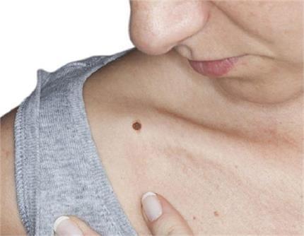 Health Update: अब स्किन कैंसर पर दवा से ज्यादा टीका करेगा काम