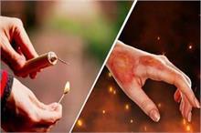 दिवाली के पटाखों से जल जाए हाथ-पैर तो तुरंत करें ये काम