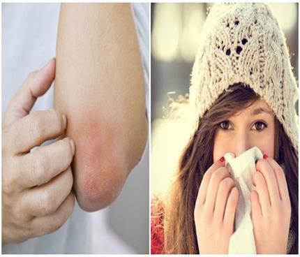 सर्दियों में नहीं होगी एलर्जी की प्रॉबल्म, ध्यान में रखें ये...