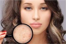 एक या दो नहीं, 6 तरह के होते हैं Pimples, हर किसी का है अलग...