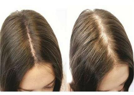 झड़ते बालों के लिए वरदान हैं ये 7 होममेड Hair Mask