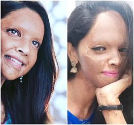 मूवी छपाक में 'एसिड सर्वाइवर' लक्ष्मी का किरदार निभाएंगी...