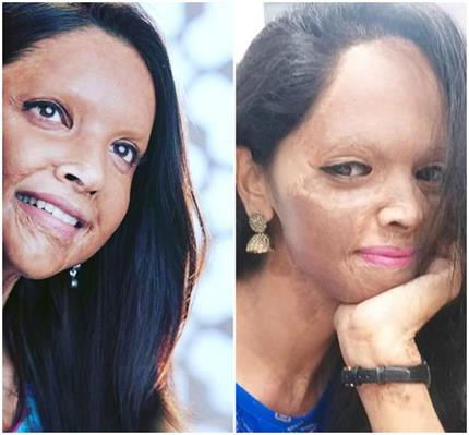 मूवी छपाक में 'एसिड सर्वाइवर' लक्ष्मी का किरदार निभाएंगी दीपिका,...