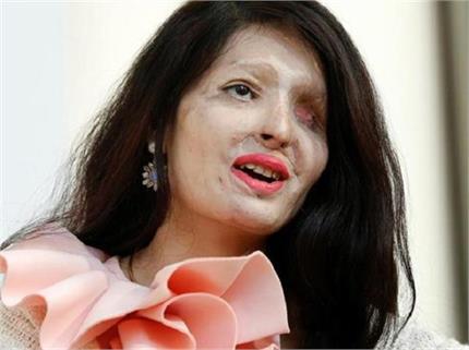 Inspiration: जीजा के एक बदले ने बिगाड़ा था रेशमा का चेहरा लेकिन नहीं...