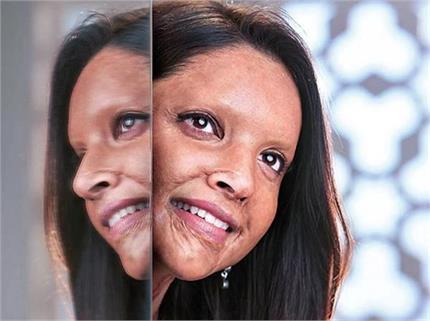 एसिड सर्वाइवर बनने के लिए दीपिका ने करवाया Prosthetic Makeup, जानिए...