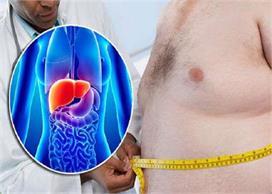 तेजी से बढ़ रही है Fatty Liver की समस्या, लक्षण पहचानकर...
