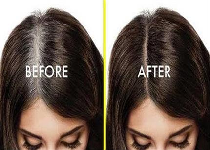 No Side Effect: सफेद बालों को नैचुरली काला करेंगे ये 5 देसी टिप्स