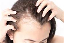 Hair Care: माथे पर आए 'बेबी हेयर' से 4 आसान टिप्स से पाएं...