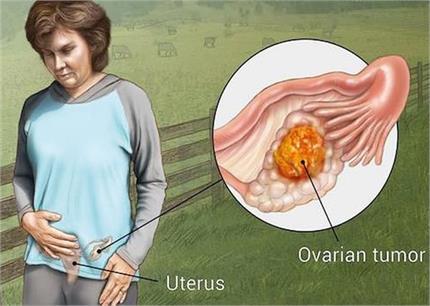 महिलाओं में बढ़ते ओवरी कैंसर के संकेतों को न करें इग्नोर, इस 1 चीज से...