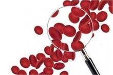 दवाइयों से नहीं, डाइट में ये 6 चीजें खाकर बढ़ाएं Red Blood...