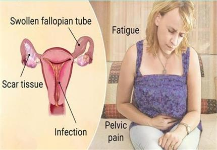 Women Problem: प्रेग्नेंसी नहीं होने देता PID रोग, जानिए इस बीमारी के...