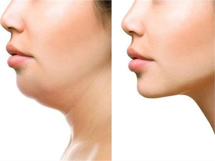 चेहरे का फैट कम करने के लिए एक्सरसाइज, महीनेेभर में मिलेगा रिजल्ट