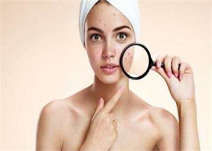 Skin Care: मुंहासों की जड़ से छुट्टी करेगी उड़द दाल, 3 तरीकों से करें...