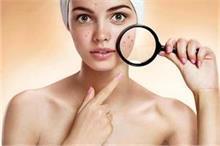 Blind Pimples: स्किन के अंदर होने वाले मुहांसों से कैसे...