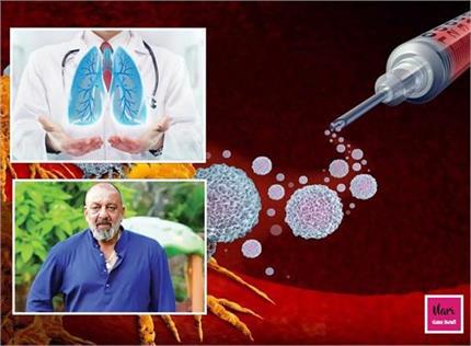 संजय दत्त करवा रहे इम्यूनोथेरेपी से इलाज, चौथे स्टेज के कैंसर पर भी...