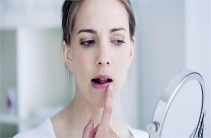Winter Care: फटे होंठों से परेशान है तो अपनाएं ये नुस्खे, तुरंत...