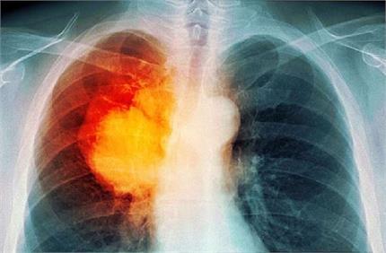 बढ़ता प्रदूषण दे रहा फेफड़ों का कैंसर, इन लोगों को जांच की सबसे...