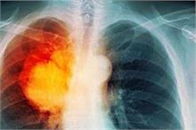 बढ़ता प्रदूषण दे रहा फेफड़ों का कैंसर, इन लोगों को जांच की...