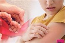 World AIDS Day: एड्स संक्रमित महिलाओं के शरीर में दिखते हैं...