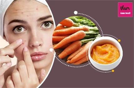 Winter Skin Care: एक्ने की छुट्टी कर देंगे गाजर के ये 3 पैक, स्किन भी...