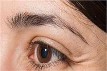 आंखों की ढीली पड़ी स्किन का कारण है आपकी ये 5 गलतियां