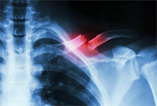 अब और भी तेजी से संभव होगा हड्डियों का इलाज, दो दवाओं का किया जाएगा उपयोग