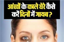 आंखों के काले घेरे कैसे करें दिनों में गायब?
