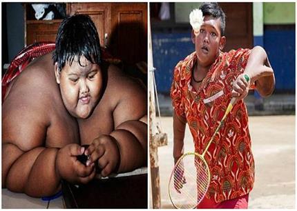दुनिया का सबसे मोटा बच्चा हुआ पतला, हैरान कर देंगी तस्वीरें