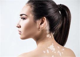 World Vitiligo Day: किन्हें होती है सफेद दाग की समस्या,...