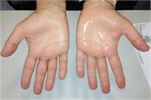 क्या आप भी है हाथ- पैरों के पसीने से परेशान? जानिए सही इलाज