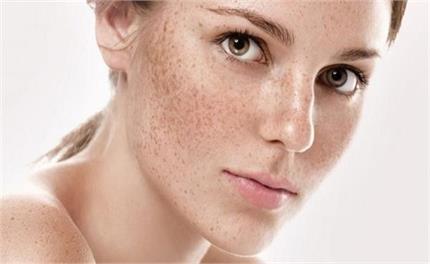 Skin Care: जिद्दी झाइयां खत्म करने के बेस्ट टिप्स