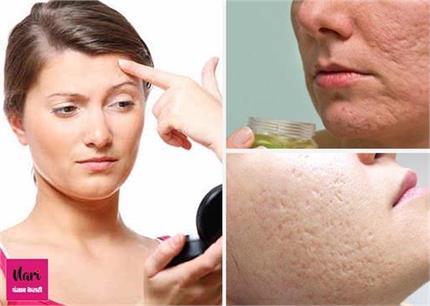 क्यों बड़े और भद्दे हो जाते हैं त्वचा के पोर्स? ऐसे करें इनकी सफाई
