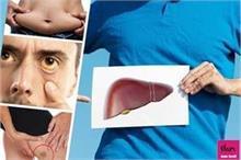 शरीर में दिखें ये 8 लक्षण तो समझ लें 80% खराब हो चुका है...