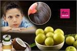 देसी नुस्खे: असमय बच्चों के बाल क्यों हो रहे सफेद?