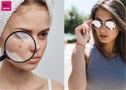 क्या सनग्लासेस पहनने से भी होते हैं पिंपल्स? जानिए इनका सही इलाज