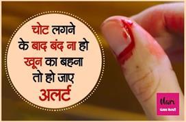 हल्के में ना लें चोट से लगातार खून बहना, गंभीर बीमारी का हो...