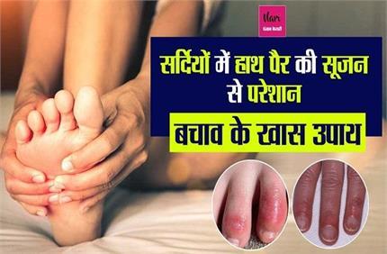 सर्दियों में हाथ-पैर की सूजन से हैं परेशान, अपनाएं बचाव के ये खास उपाय