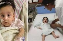 अजीबो गरीब बीमारी से जूझ रही 5 महीने की बच्ची, करोड़ों में...